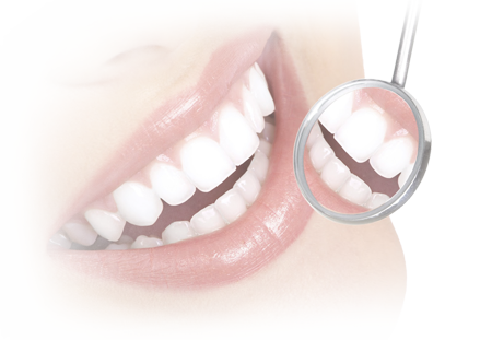 Root canal treatment in Hyderabad